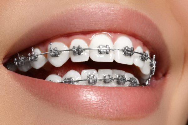 ¿Que es la ortodoncia ?